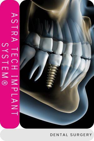 implante dental astra tech