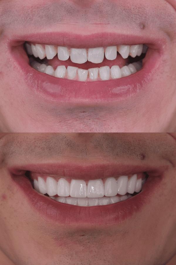 vor und nach Smile Makeover