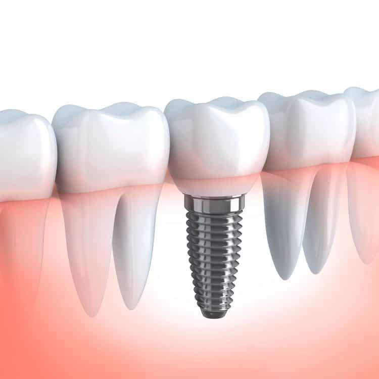 Gum diseases treatment